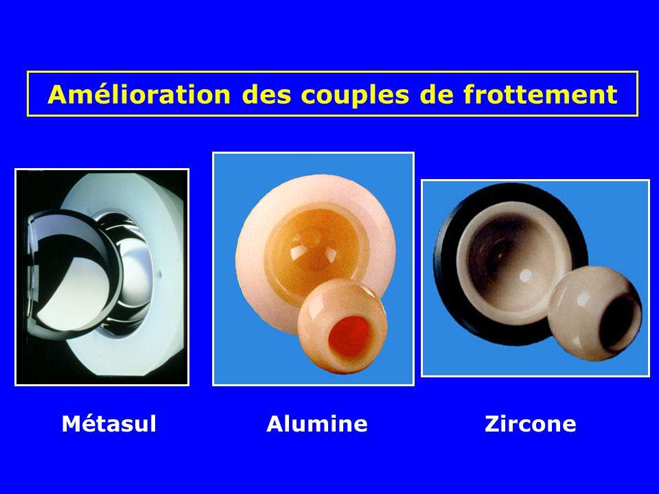 Usure métal-polyéthylène Complications des prothèses