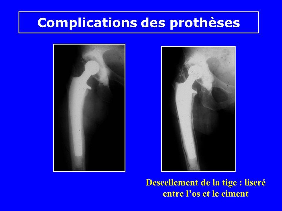 Complications des prothèses Fractures possibles au niveau des tiges