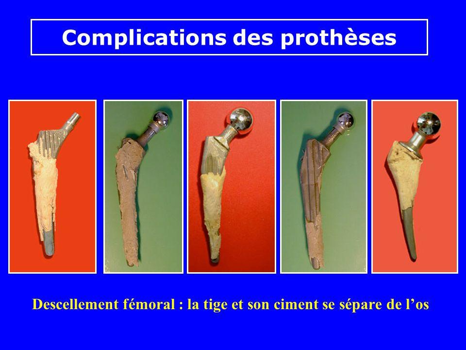 Descellement de la tige : liseré entre los et le ciment Complications des prothèses