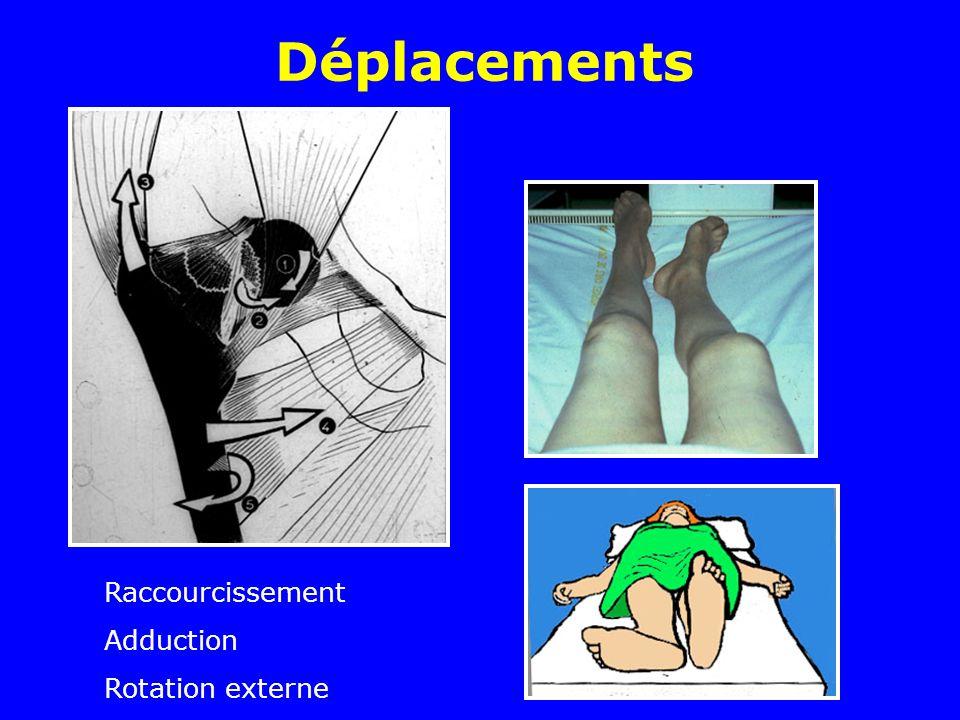 Déplacements Raccourcissement Adduction Rotation externe