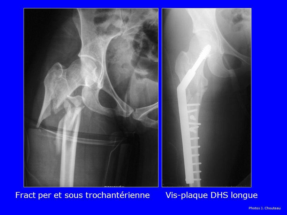 Fract trochantérienne Vis plaque DHS