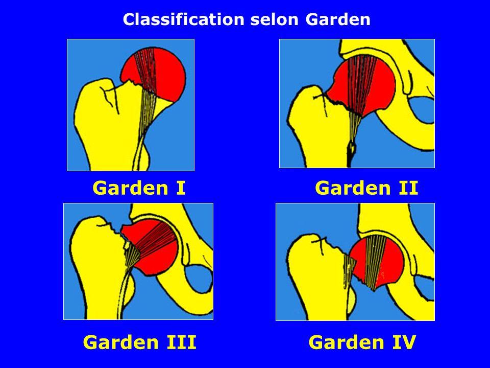 Garden I Garden II Garden III Garden IV Classification selon Garden