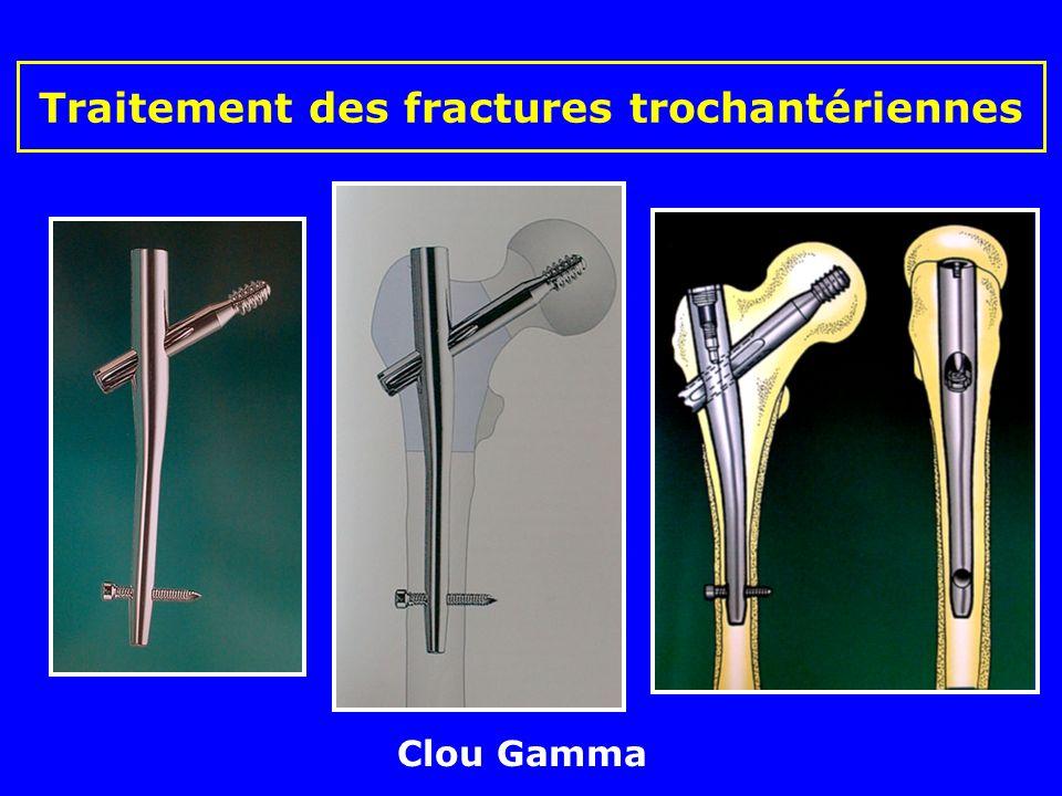 Clous de Ender (sujets âgés) Traitement des fractures trochantériennes Clous élastiques introduits au dessus du condyle interne en éventail dans le co