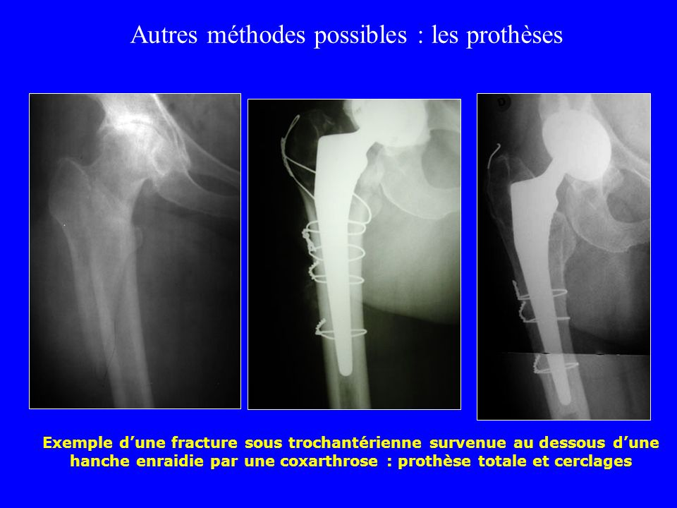 Évolution des fractures trochantériennes Pseudarthroses rares Cals vicieux (liés à la technique opératoire) Débricolages secondaires Appui trop précoc