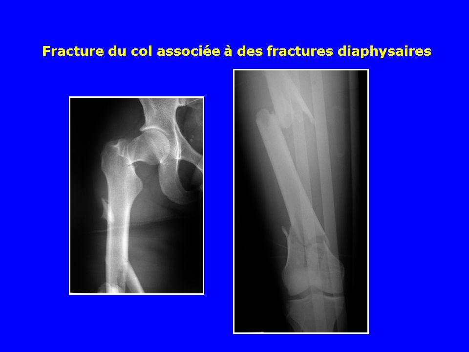 Exemple dune fracture sous trochantérienne survenue au dessous dune hanche enraidie par une coxarthrose : prothèse totale et cerclages Autres méthodes
