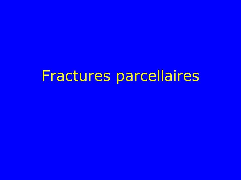 Fracture du col associée à des fractures diaphysaires