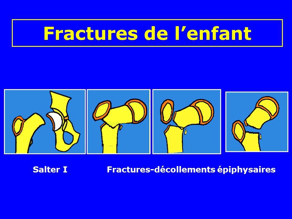 Fractures de lenfant Fractures cervicales Basi-cervicale Sous-trochantérienne