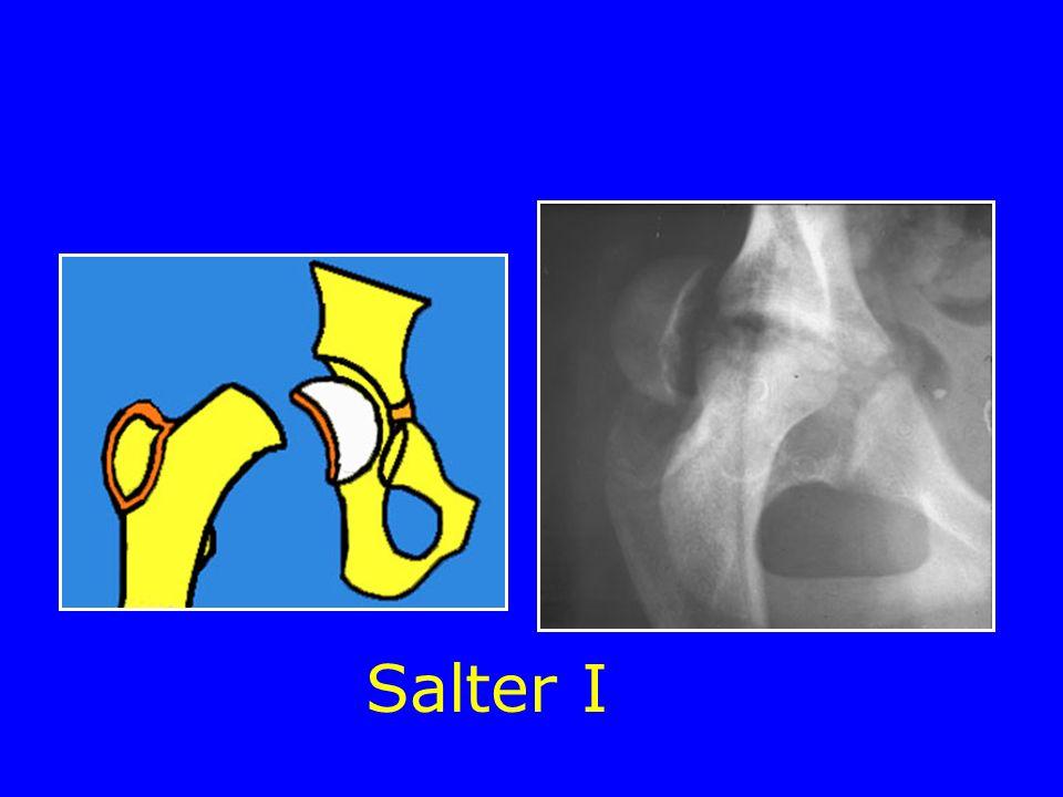 Salter I Fractures-décollements épiphysaires Fractures de lenfant