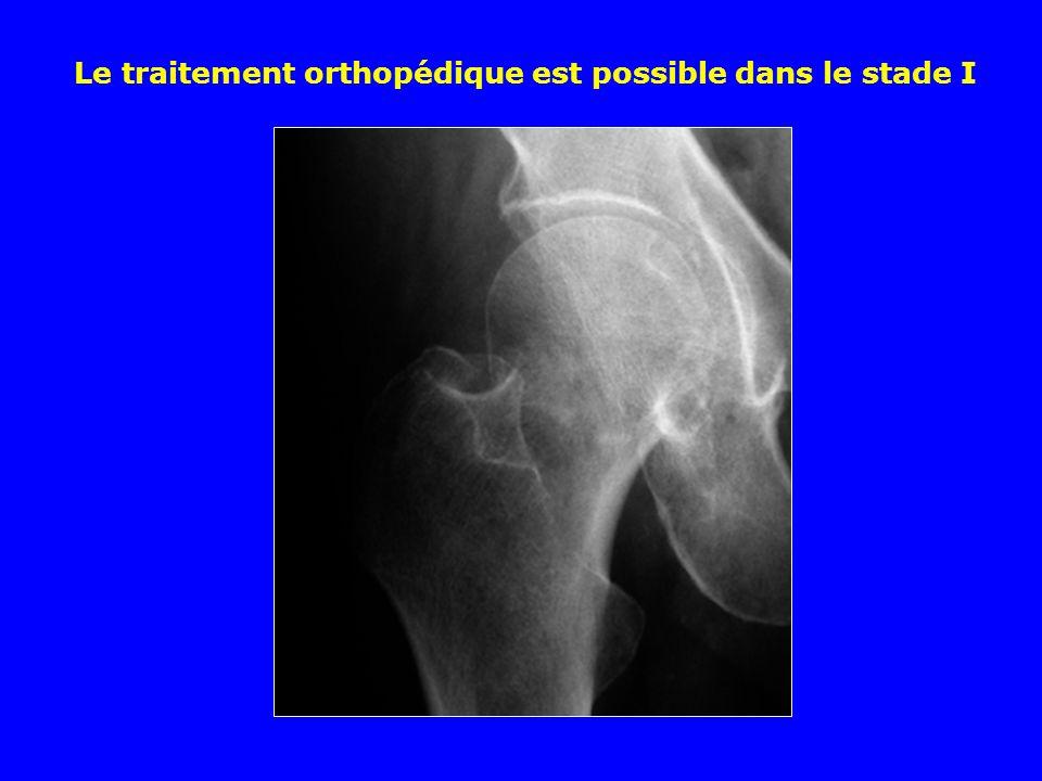 Quelle est la complication principale possible des fractures pertrochantériennes après ostéosynthèse .