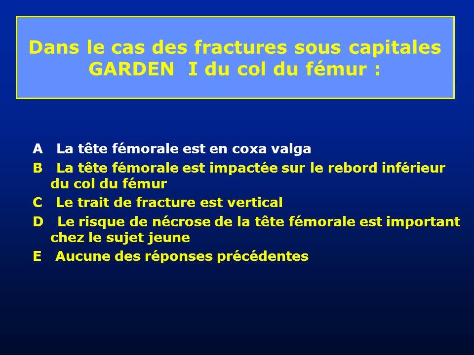 Dans le cas des fractures sous capitales GARDEN I du col du fémur : A La tête fémorale est en coxa valga B La tête fémorale est impactée sur le rebord