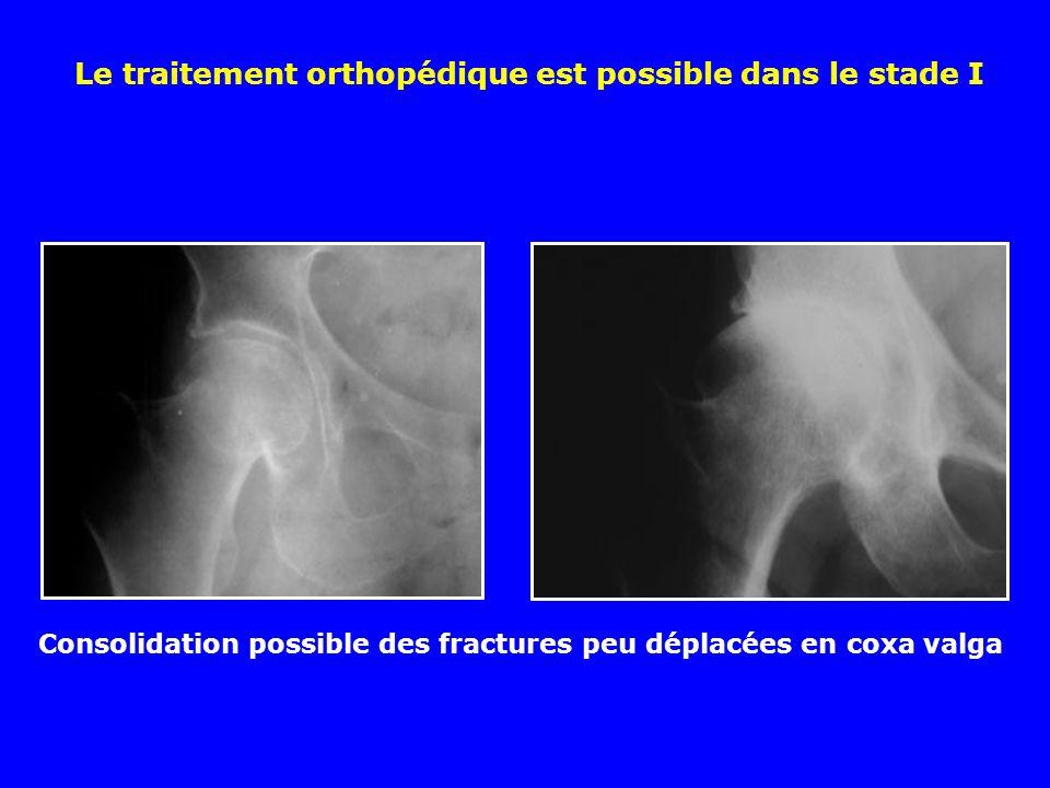 Quelle est la méthode thérapeutique de choix chez le vieillard présentant une fracture du col fémoral en coxa vara : A Réduction orthopédique et immobilisation plâtrée B Ostéosynthèse par clous de Ender C Prothèse d emblée D Ostéosynthèse par clou-plaque E Ostéosynthèse par 3 vis