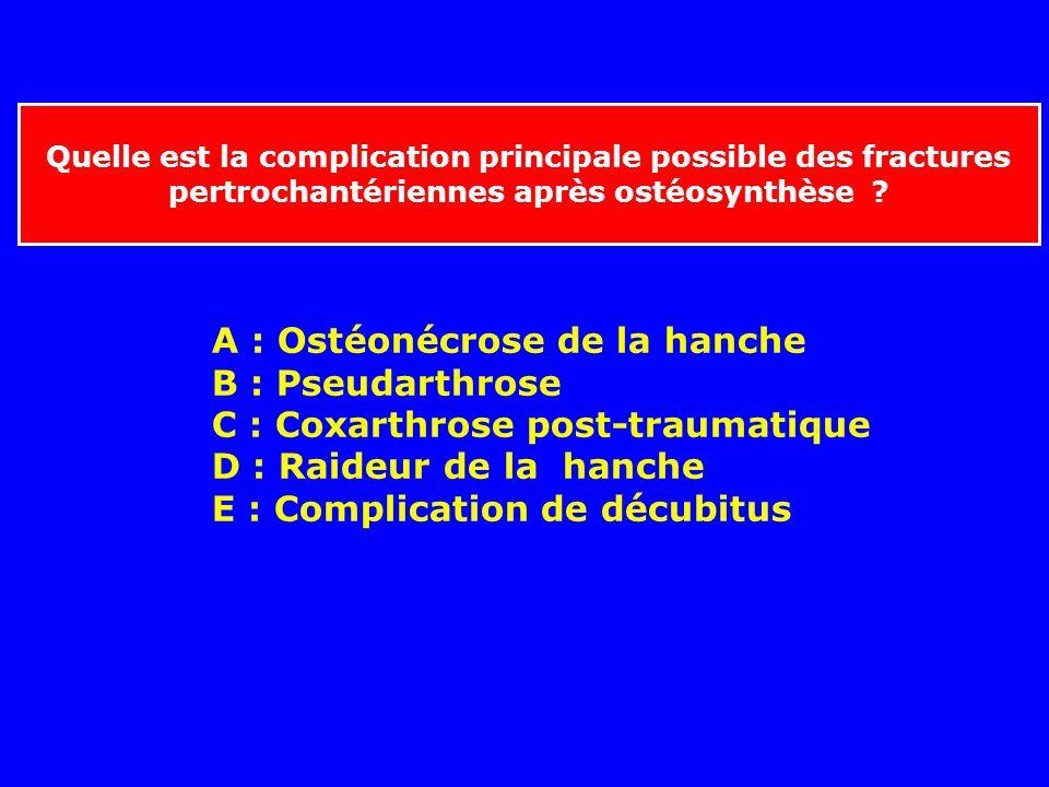 Le traitement le plus adapté aux fractures pertrochantériennes du sujet âgé de 60 ans est-il ? A - La traction prolongée jusqu'à consolidation B - L'i