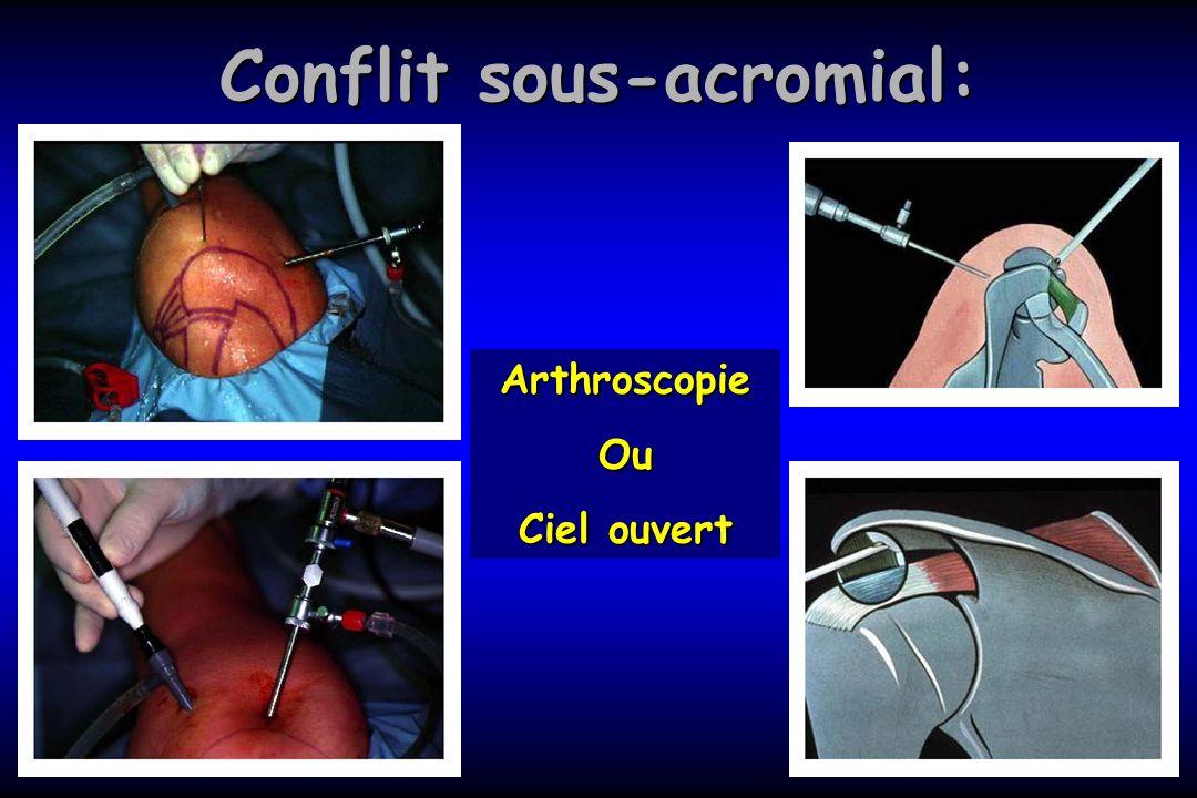 Conflit sous-acromial: ArthroscopieOu Ciel ouvert