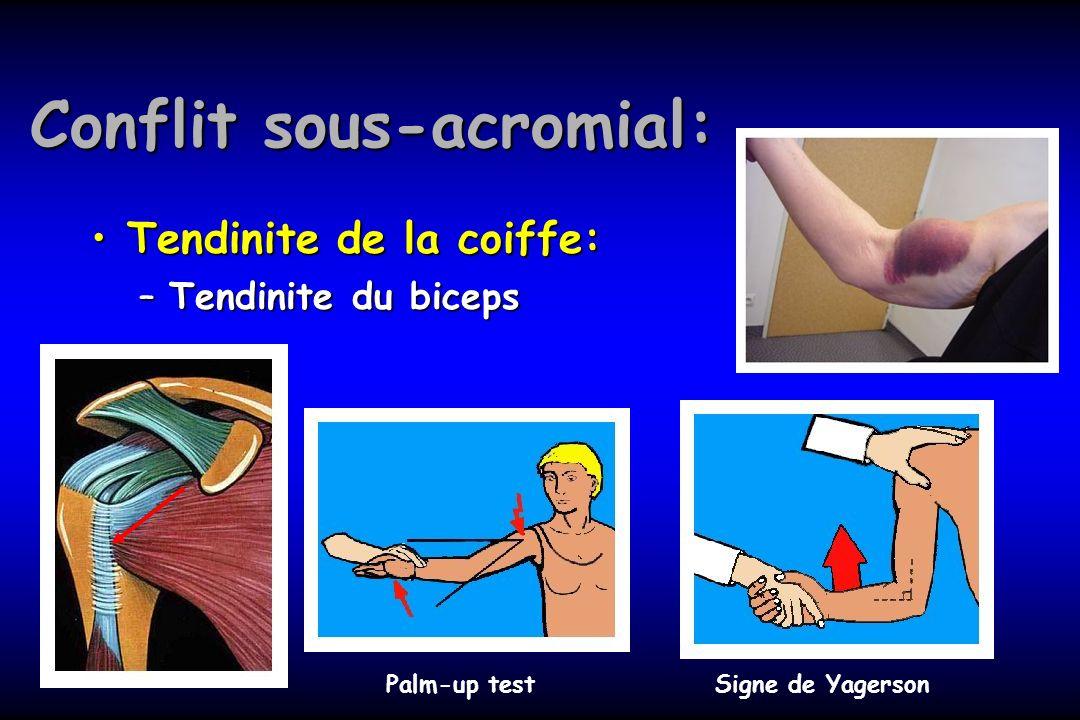 Conflit sous-acromial: Tendinite de la coiffe:Tendinite de la coiffe: –Tendinite du biceps Palm-up test Signe de Yagerson