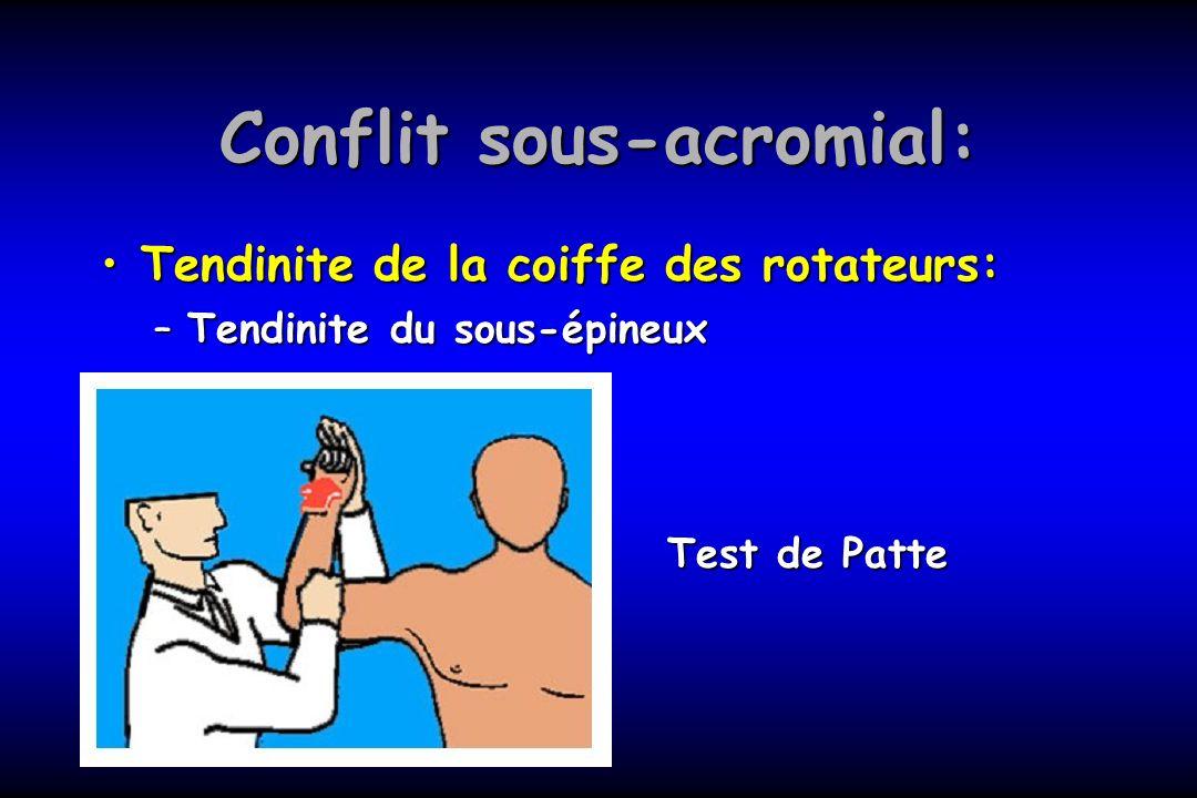 Conflit sous-acromial: Tendinite de la coiffe des rotateurs:Tendinite de la coiffe des rotateurs: –Tendinite du sous-épineux Test de Patte