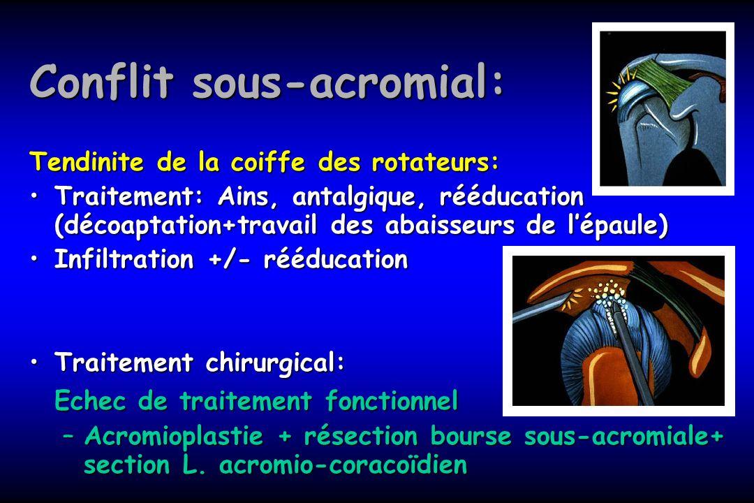 Conflit sous-acromial: Tendinite de la coiffe des rotateurs: Traitement: Ains, antalgique, rééducation (décoaptation+travail des abaisseurs de lépaule