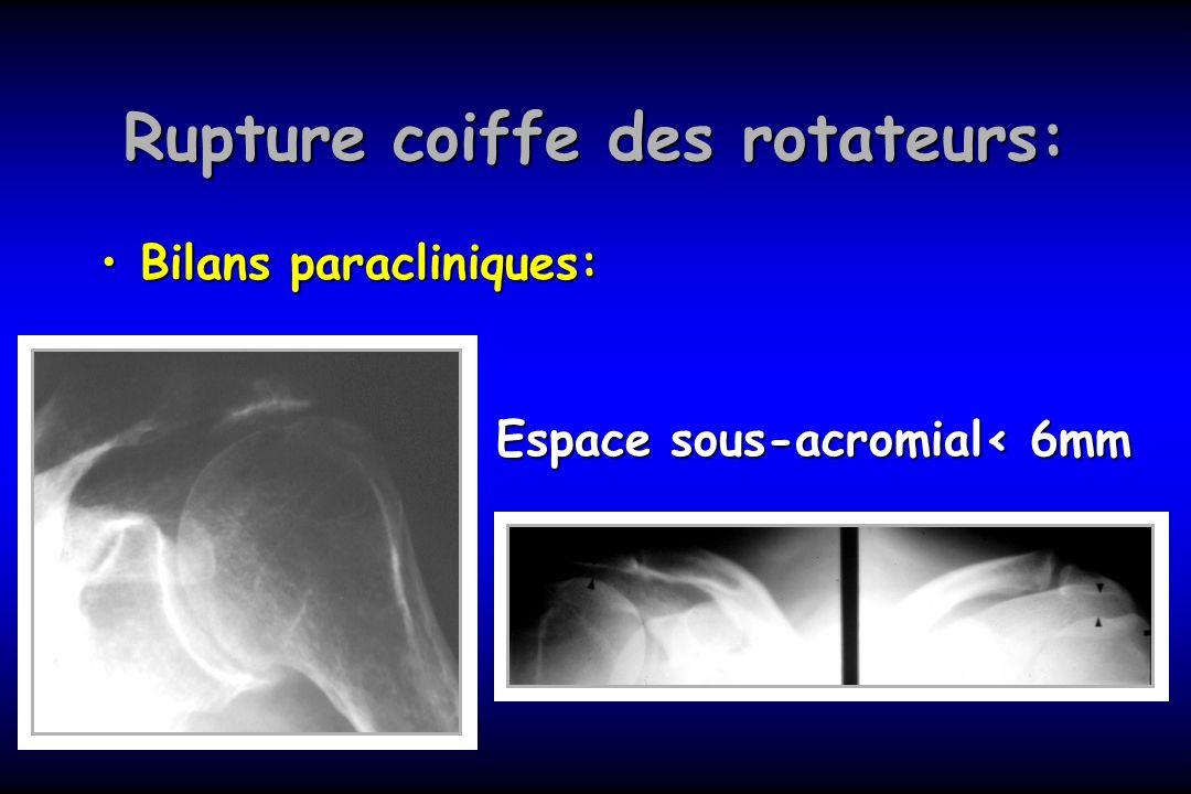 Rupture coiffe des rotateurs: Bilans paracliniques:Bilans paracliniques: Espace sous-acromial< 6mm