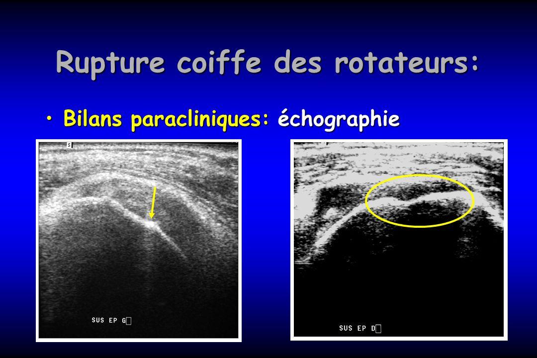 Rupture coiffe des rotateurs: Bilans paracliniques: échographieBilans paracliniques: échographie