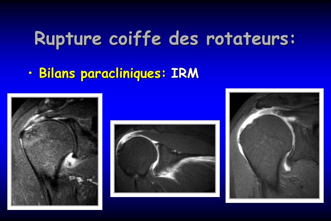 Rupture coiffe des rotateurs: Bilans paracliniques: IRMBilans paracliniques: IRM