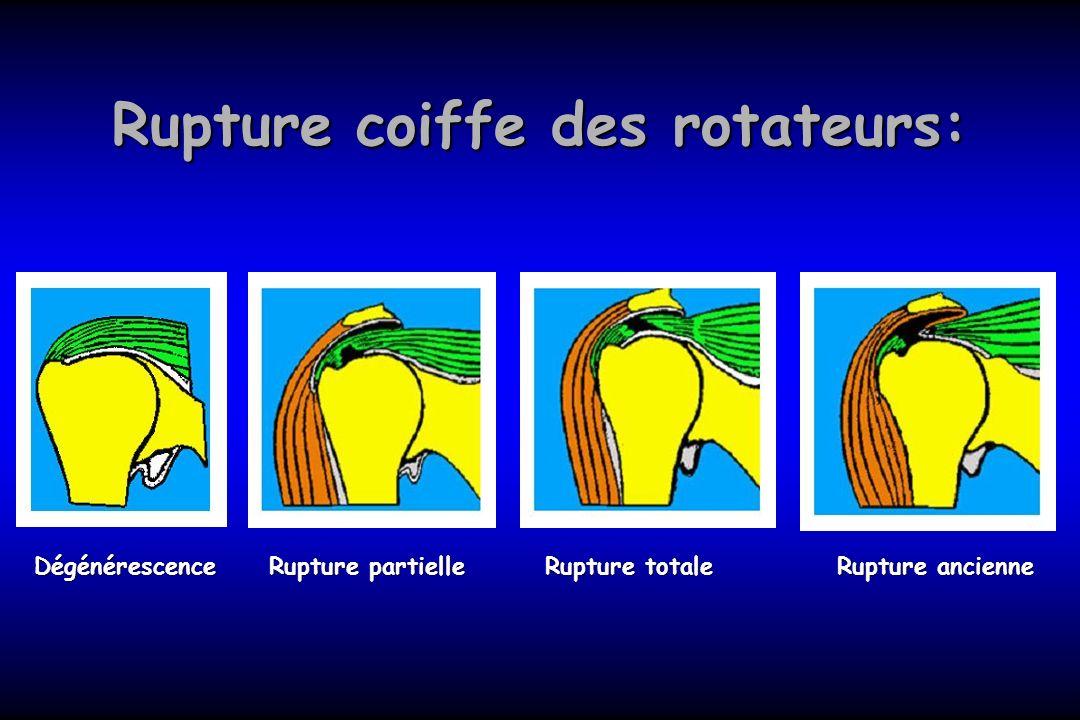 Rupture coiffe des rotateurs: Dégénérescence Rupture partielle Rupture totale Rupture ancienne