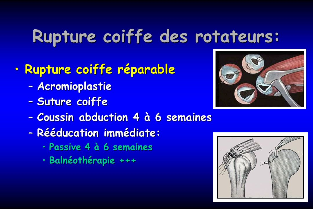 Rupture coiffe des rotateurs: Rupture coiffe réparableRupture coiffe réparable –Acromioplastie –Suture coiffe –Coussin abduction 4 à 6 semaines –Réédu