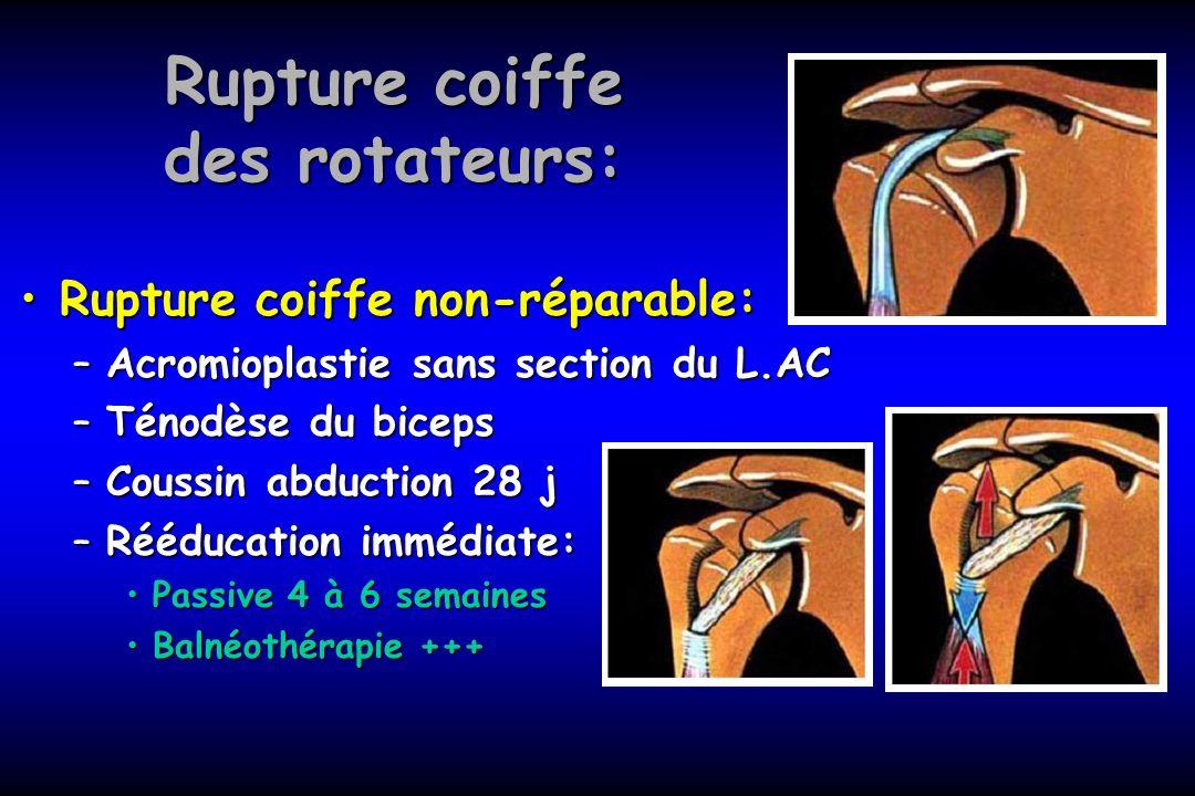 Rupture coiffe des rotateurs: Rupture coiffe non-réparable:Rupture coiffe non-réparable: –Acromioplastie sans section du L.AC –Ténodèse du biceps –Cou