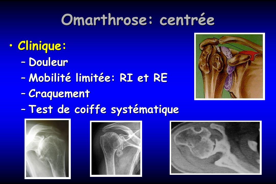 Omarthrose: centrée Clinique:Clinique: –Douleur –Mobilité limitée: RI et RE –Craquement –Test de coiffe systématique