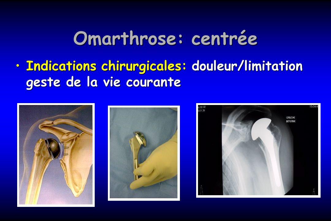 Omarthrose: centrée Indications chirurgicales: douleur/limitation geste de la vie couranteIndications chirurgicales: douleur/limitation geste de la vi