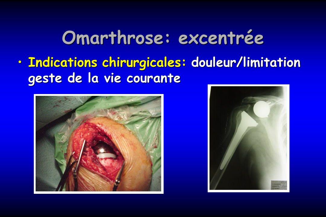 Omarthrose: excentrée Indications chirurgicales: douleur/limitation geste de la vie couranteIndications chirurgicales: douleur/limitation geste de la
