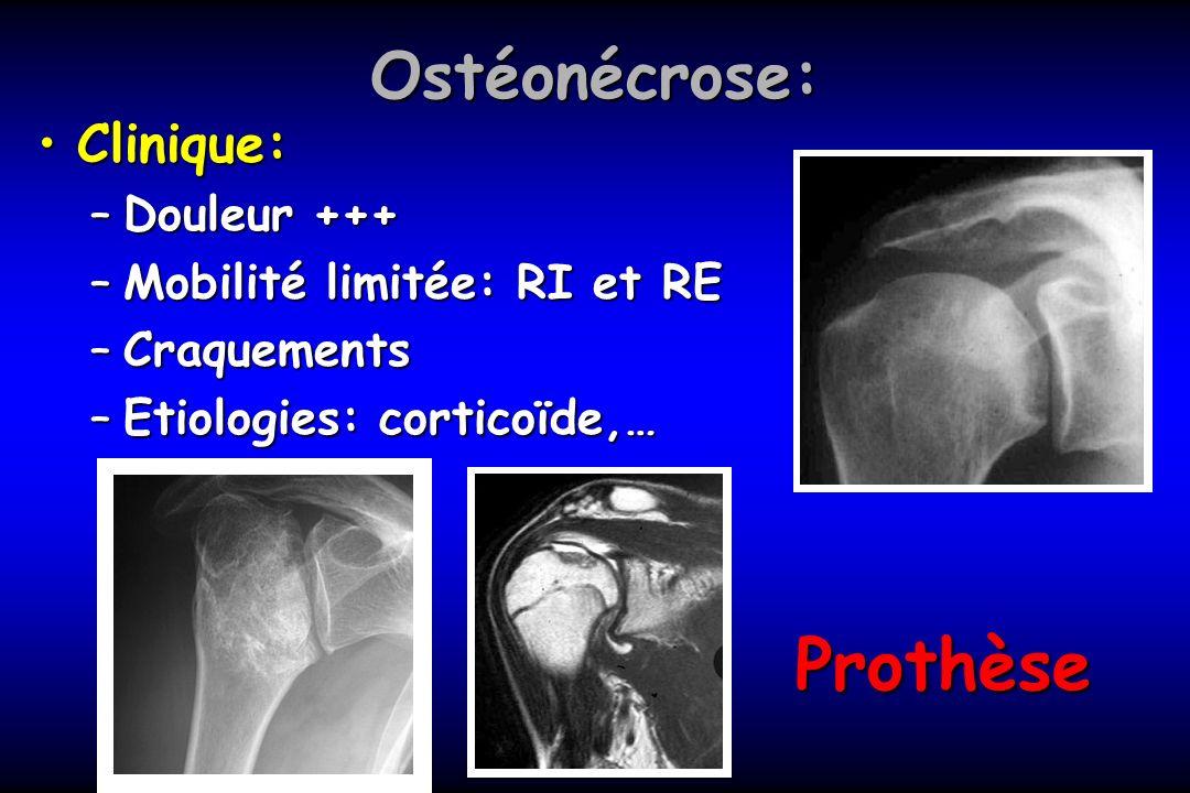 Ostéonécrose: Clinique:Clinique: –Douleur +++ –Mobilité limitée: RI et RE –Craquements –Etiologies: corticoïde,… Prothèse