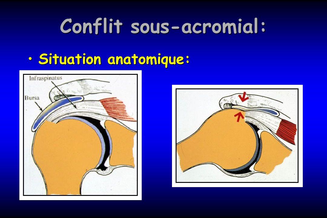 Conflit sous-acromial: Tendinite de la coiffe des rotateurs: Traitement: Ains, antalgique, rééducation (décoaptation+travail des abaisseurs de lépaule)Traitement: Ains, antalgique, rééducation (décoaptation+travail des abaisseurs de lépaule) Infiltration +/- rééducationInfiltration +/- rééducation Traitement chirurgical:Traitement chirurgical: Echec de traitement fonctionnel –Acromioplastie + résection bourse sous-acromiale+ section L.