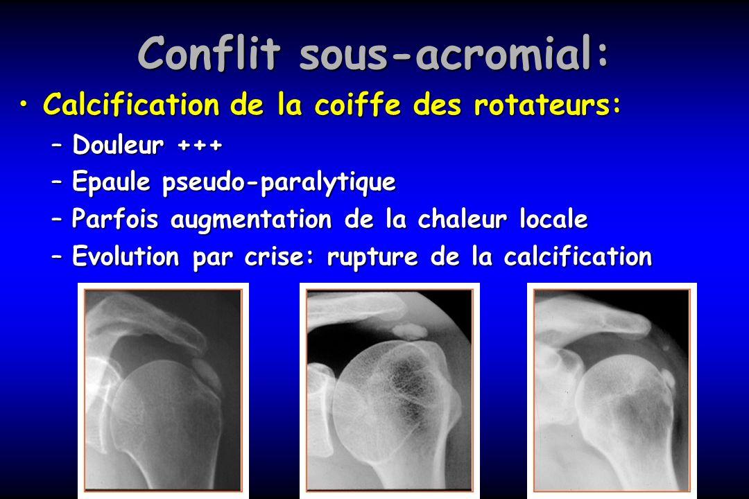 Conflit sous-acromial: Calcification de la coiffe des rotateurs:Calcification de la coiffe des rotateurs: –Douleur +++ –Epaule pseudo-paralytique –Par