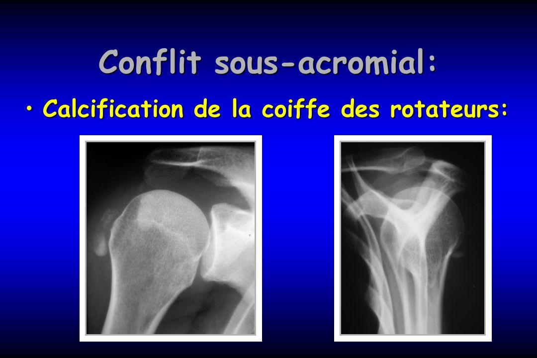 Omarthrose: excentrée Clinique:Clinique: –Douleur –Mobilité limitée: RI et RE –Craquement –Rupture coiffe