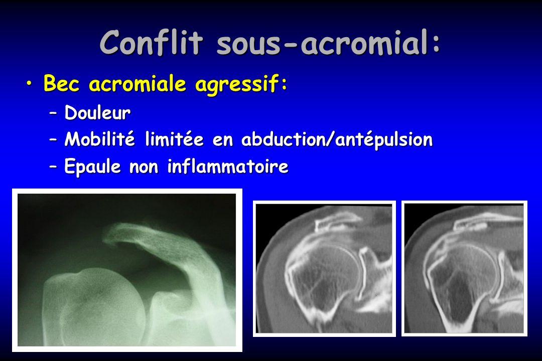 Conflit sous-acromial: Bec acromiale agressif:Bec acromiale agressif: –Douleur –Mobilité limitée en abduction/antépulsion –Epaule non inflammatoire