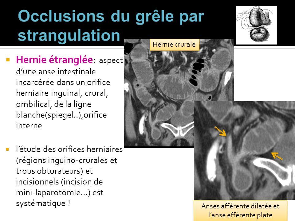 Hernie étranglée : aspect dune anse intestinale incarcérée dans un orifice herniaire inguinal, crural, ombilical, de la ligne blanche(spiegel..),orifi