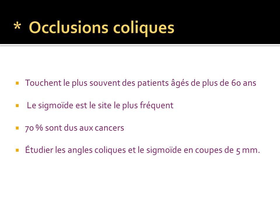 Obstruction: Cancer du colon Sigmoïdite diverticulaire Endométriose Fécalome Strangulation: Volvulus du caecum ou du sigmoïde Invagination