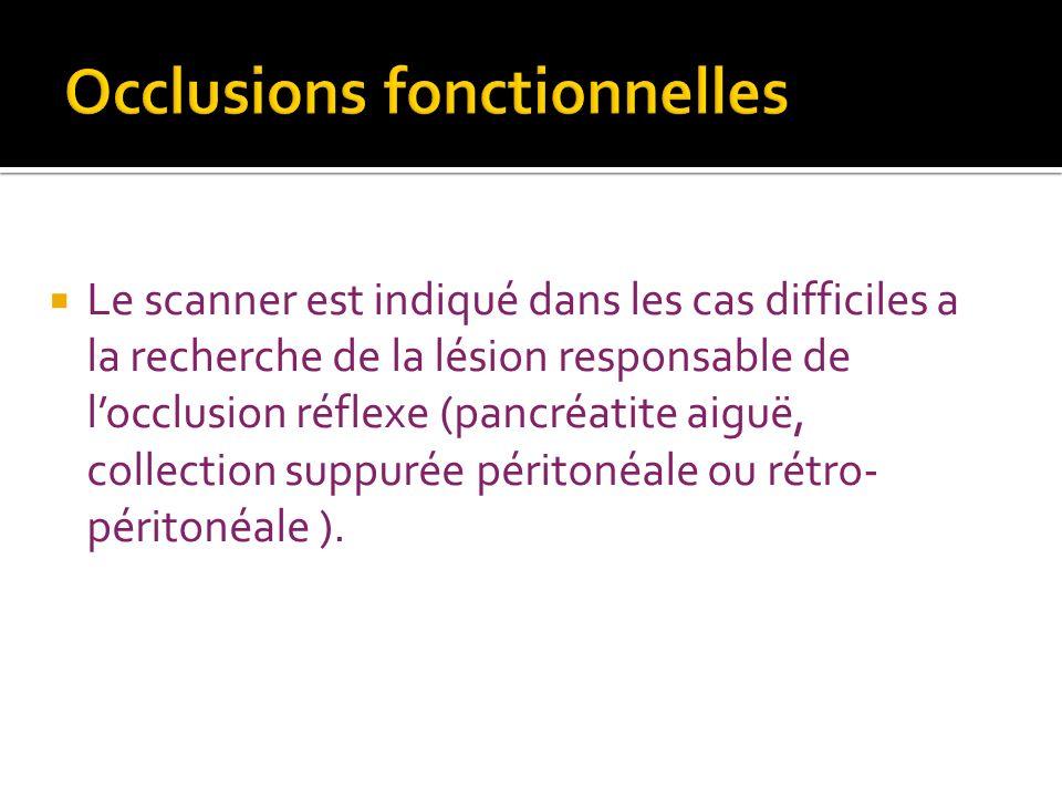 Le scanner est indiqué dans les cas difficiles a la recherche de la lésion responsable de locclusion réflexe (pancréatite aiguë, collection suppurée p
