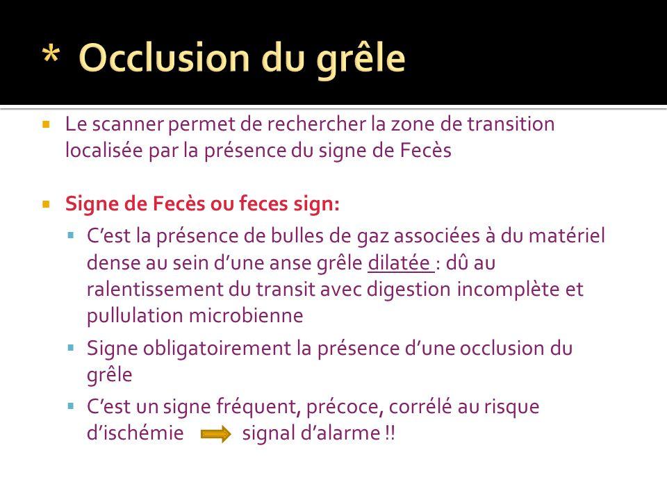 Le scanner permet de rechercher la zone de transition localisée par la présence du signe de Fecès Signe de Fecès ou feces sign: Cest la présence de bu