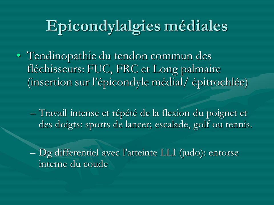 Epicondylalgies médiales Tendinopathie du tendon commun des fléchisseurs: FUC, FRC et Long palmaire (insertion sur lépicondyle médial/ épitrochlée)Ten
