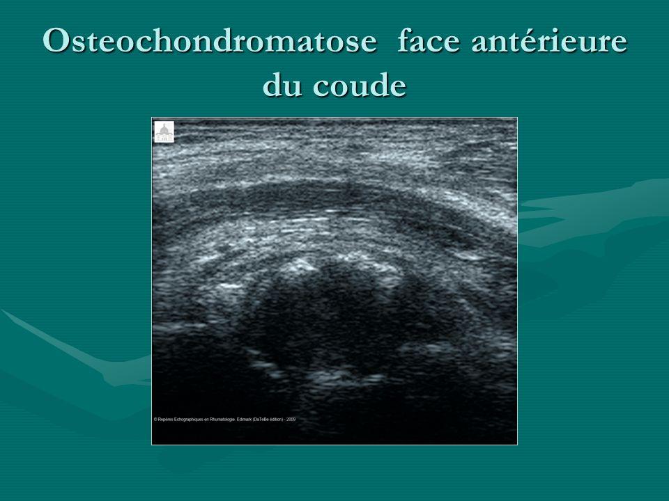 Osteochondromatose face antérieure du coude