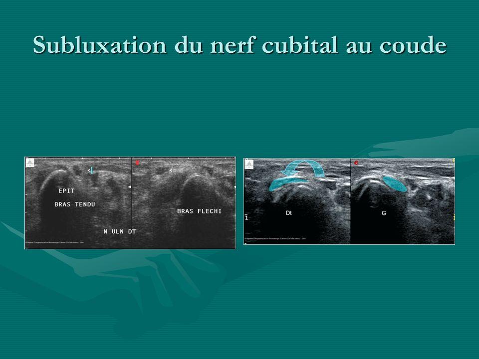 Subluxation du nerf cubital au coude