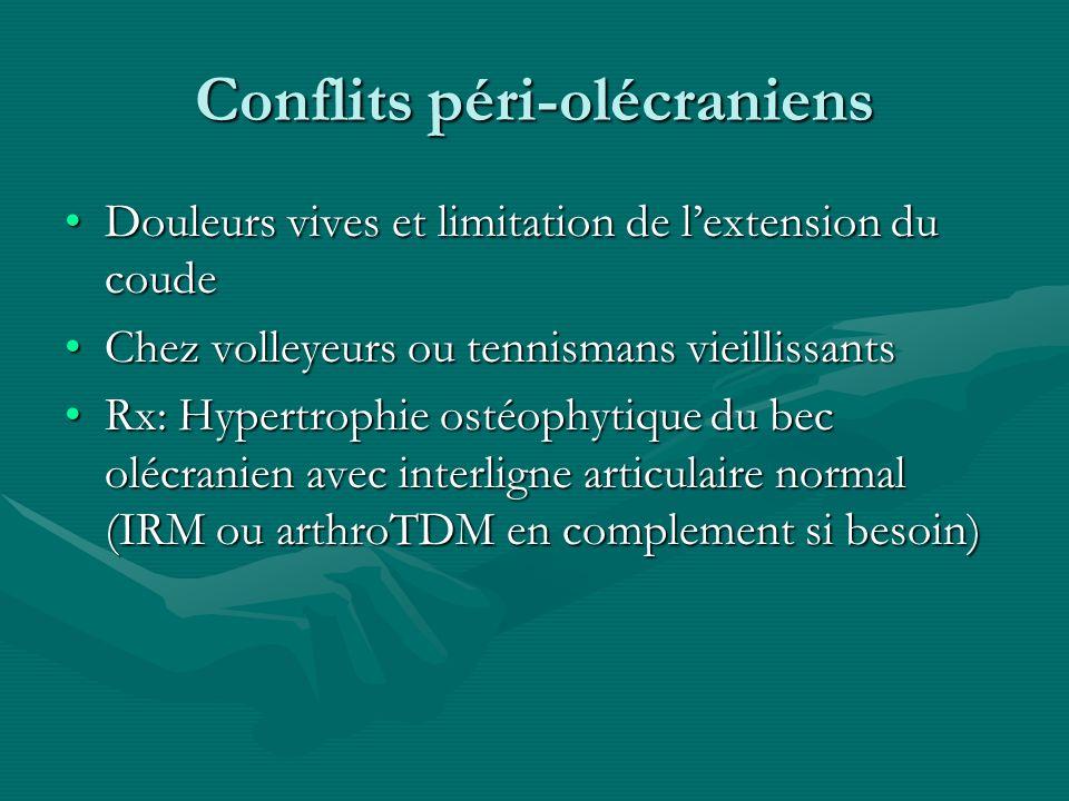 Conflits péri-olécraniens Douleurs vives et limitation de lextension du coudeDouleurs vives et limitation de lextension du coude Chez volleyeurs ou te