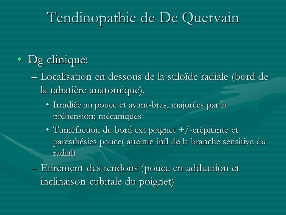 Tendinopathie de De Quervain Dg clinique:Dg clinique: –Localisation en dessous de la stiloïde radiale (bord de la tabatière anatomique). Irradiée au p