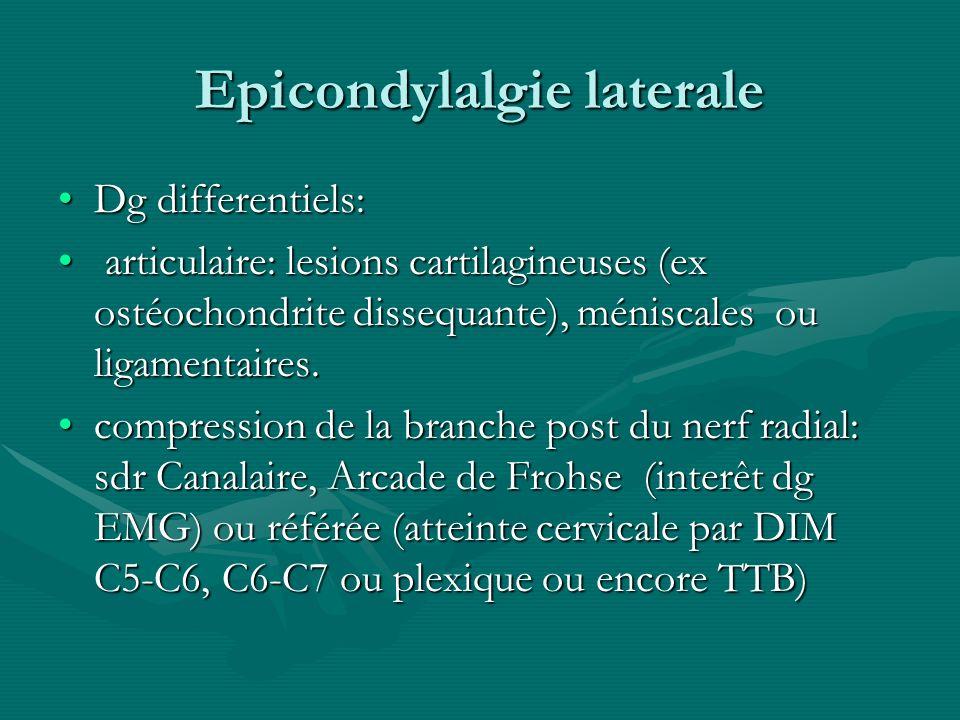 Epicondylalgie laterale Dg differentiels:Dg differentiels: articulaire: lesions cartilagineuses (ex ostéochondrite dissequante), méniscales ou ligamen