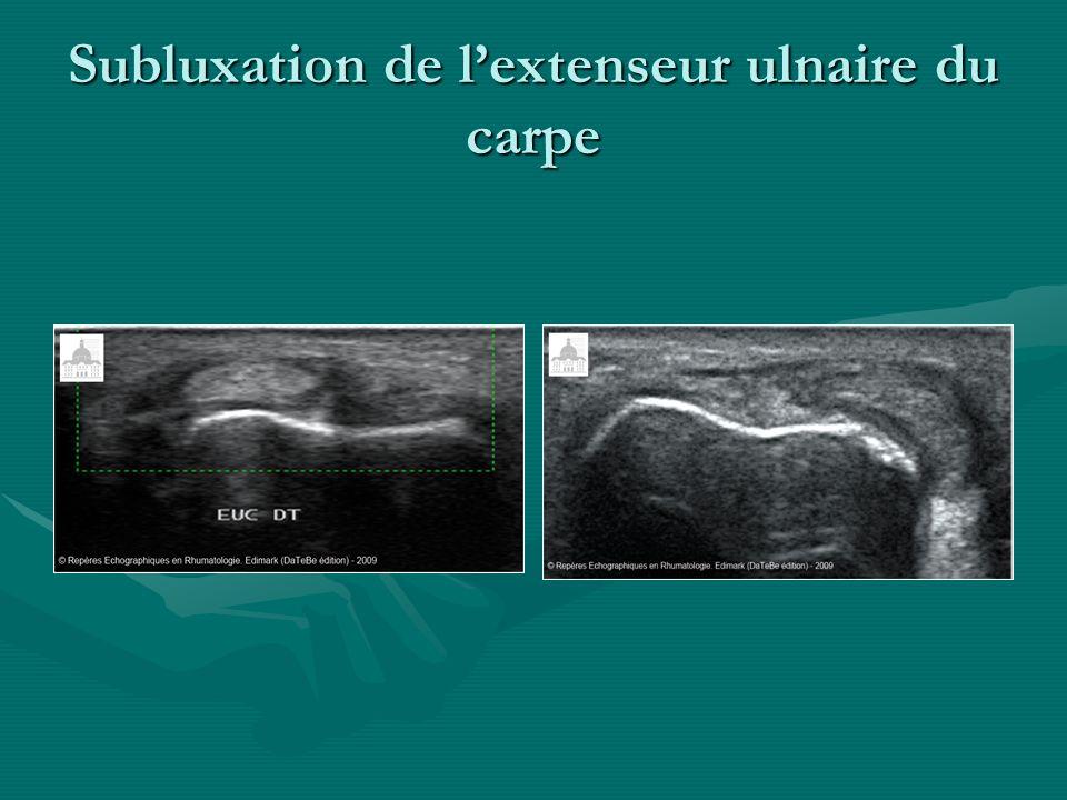 Subluxation de lextenseur ulnaire du carpe