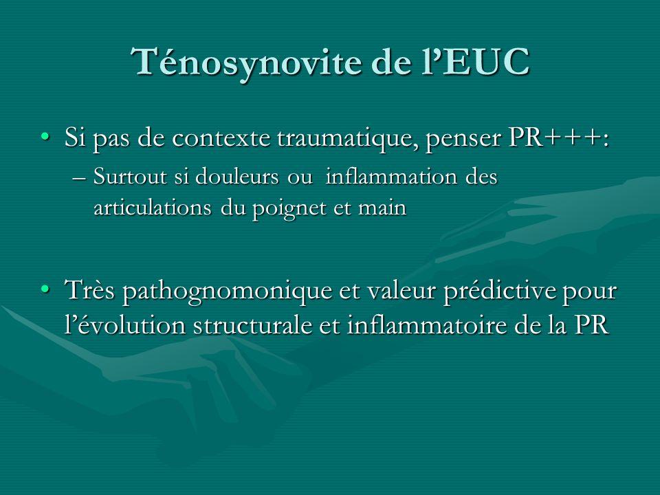 Si pas de contexte traumatique, penser PR+++:Si pas de contexte traumatique, penser PR+++: –Surtout si douleurs ou inflammation des articulations du p