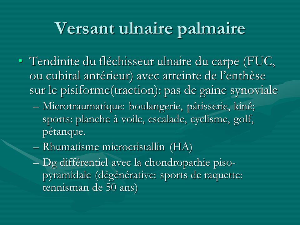 Versant ulnaire palmaire Tendinite du fléchisseur ulnaire du carpe (FUC, ou cubital antérieur) avec atteinte de lenthèse sur le pisiforme(traction): p