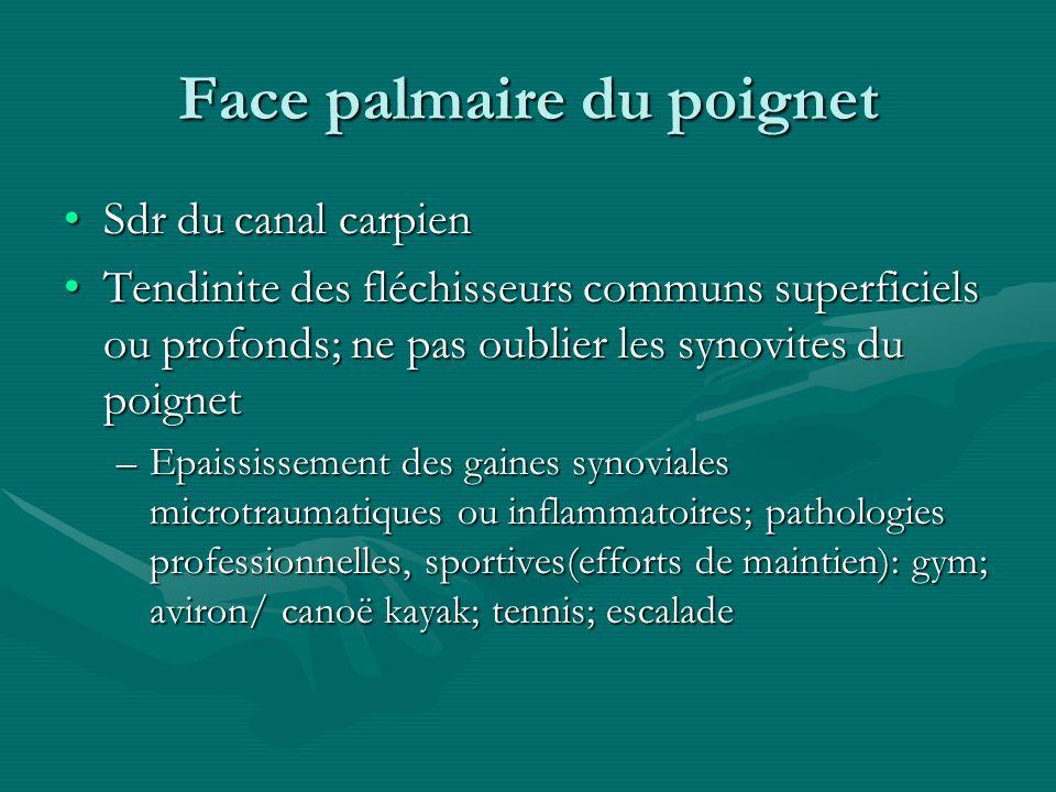 Face palmaire du poignet Sdr du canal carpienSdr du canal carpien Tendinite des fléchisseurs communs superficiels ou profonds; ne pas oublier les syno