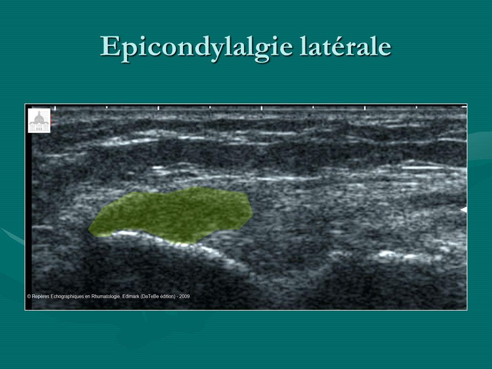 Tendinopathies face antérieure du coude Imagerie: Echo, TDM et IRM parlantes pour les tendinopathies du biceps brachial Rx std: parlante pour la chondromatose synoviale (OCM surtout)=> ArthroTDM++
