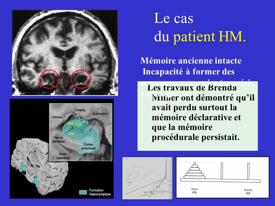 Le cas du patient HM. Les travaux de Brenda Milner ont démontré quil avait perdu surtout la mémoire déclarative et que la mémoire procédurale persista